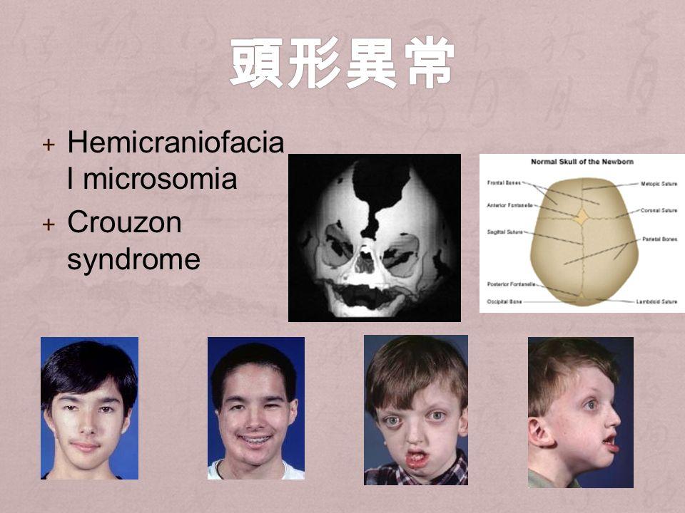 + Hemicraniofacia l microsomia + Crouzon syndrome