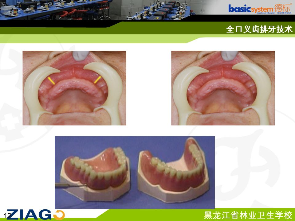 黑龙江省林业卫生学校 12 全口义齿排牙技术