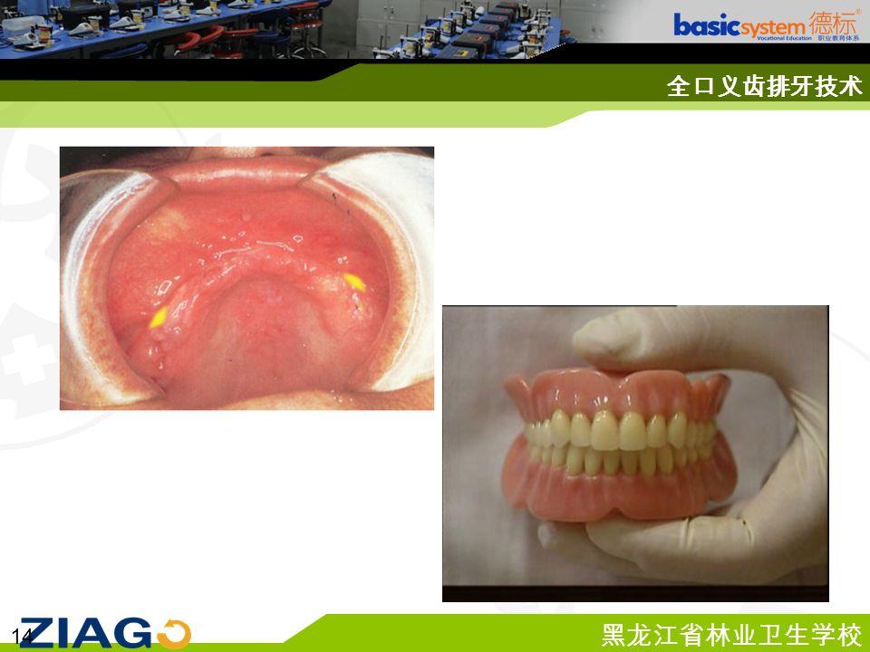 黑龙江省林业卫生学校 14 全口义齿排牙技术