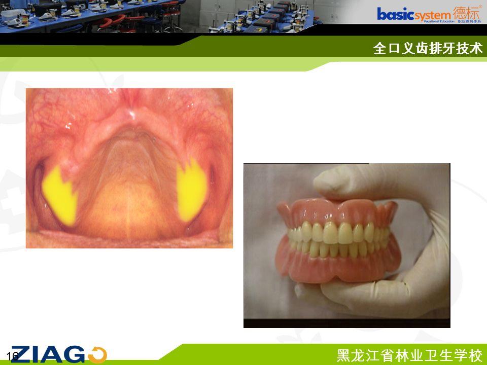 黑龙江省林业卫生学校 16 全口义齿排牙技术