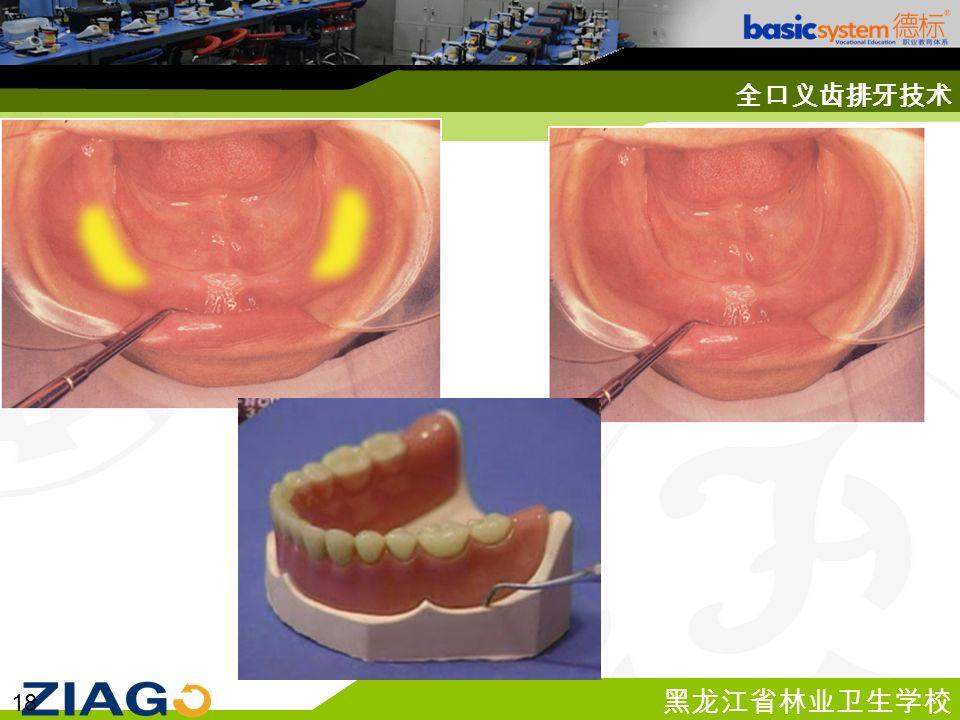 黑龙江省林业卫生学校 18 全口义齿排牙技术