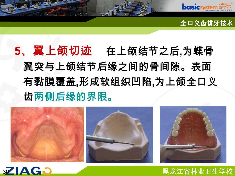 黑龙江省林业卫生学校 30 全口义齿排牙技术 5 、翼上颌切迹 在上颌结节之后, 为蝶骨 翼突与上颌结节后缘之间的骨间隙。表面 有黏膜覆盖, 形成软组织凹陷, 为上颌全口义 齿两侧后缘的界限。