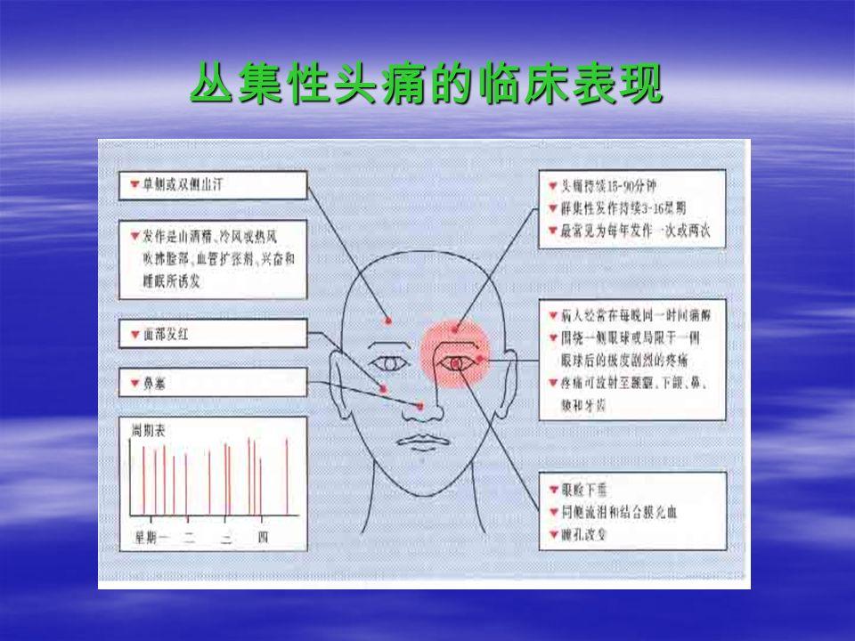 丛集性头痛的临床表现