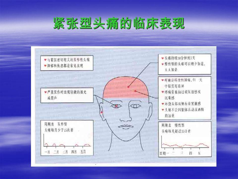 紧张型头痛的临床表现