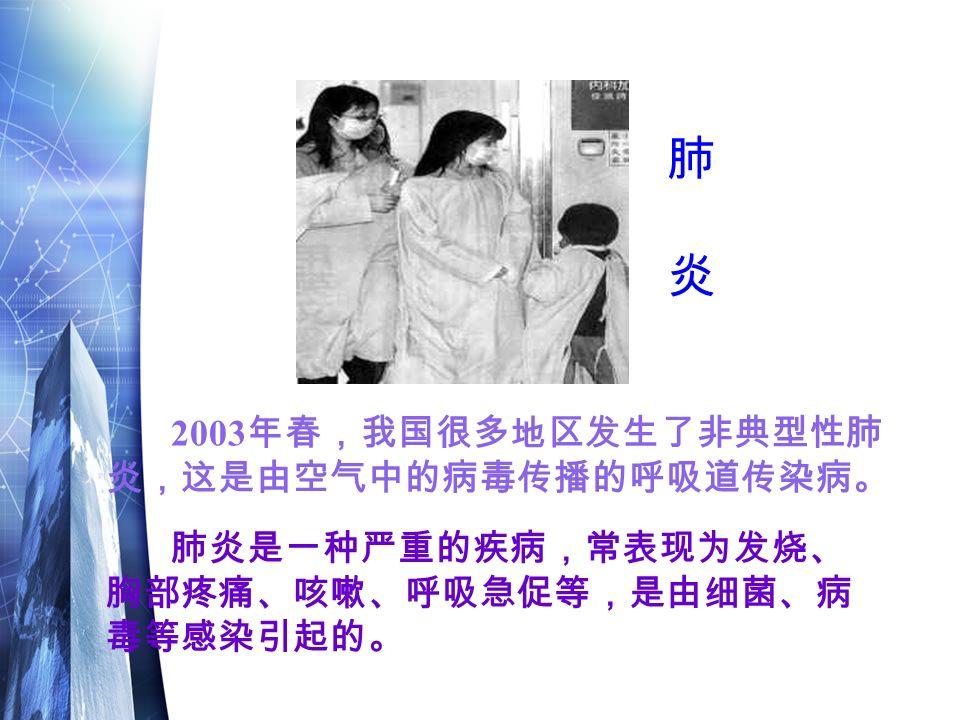 肺炎是一种严重的疾病,常表现为发烧、 胸部疼痛、咳嗽、呼吸急促等,是由细菌、病 毒等感染引起的。 2003 年春,我国很多地区发生了非典型性肺 炎,这是由空气中的病毒传播的呼吸道传染病。