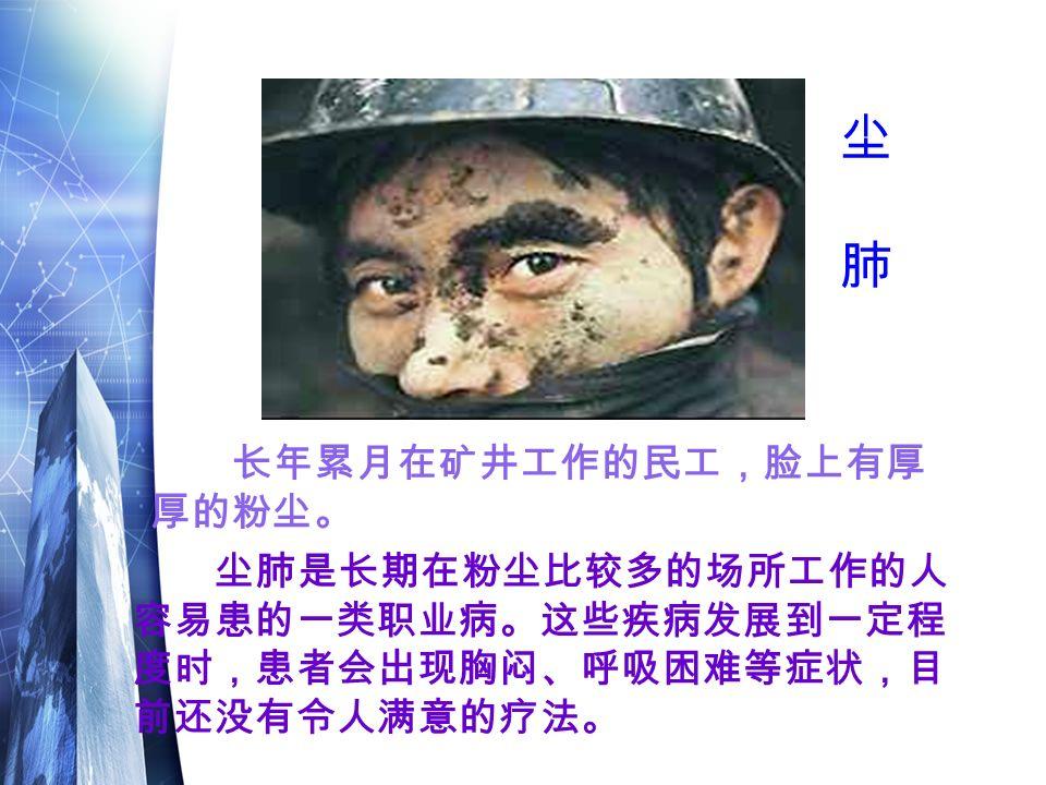 尘肺是长期在粉尘比较多的场所工作的人 容易患的一类职业病。这些疾病发展到一定程 度时,患者会出现胸闷、呼吸困难等症状,目 前还没有令人满意的疗法。 长年累月在矿井工作的民工,脸上有厚 厚的粉尘。