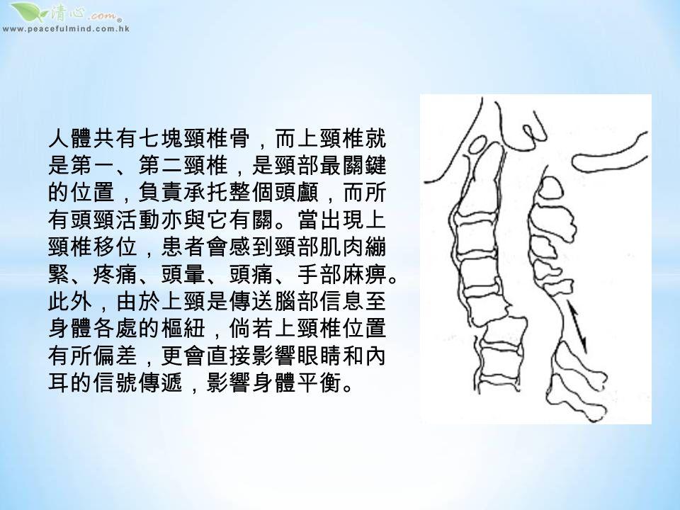 頸椎關節移位與日常生活息息相關,以錯誤 姿勢用電腦、打瞌睡時兩頭搖、運動損傷等 都有機會形成,因此大家應多注意日常姿勢, 並針對地進行鍛煉運動,防患於未然。