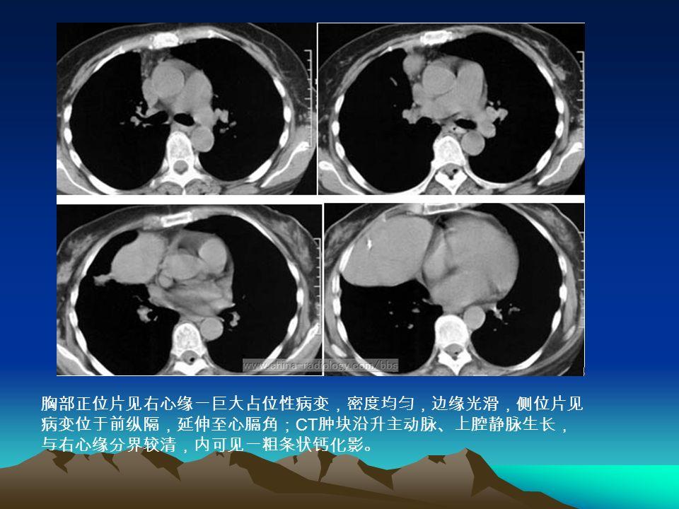 胸部正位片见右心缘一巨大占位性病变,密度均匀,边缘光滑,侧位片见 病变位于前纵隔,延伸至心膈角; CT 肿块沿升主动脉、上腔静脉生长, 与右心缘分界较清,内可见一粗条状钙化影。
