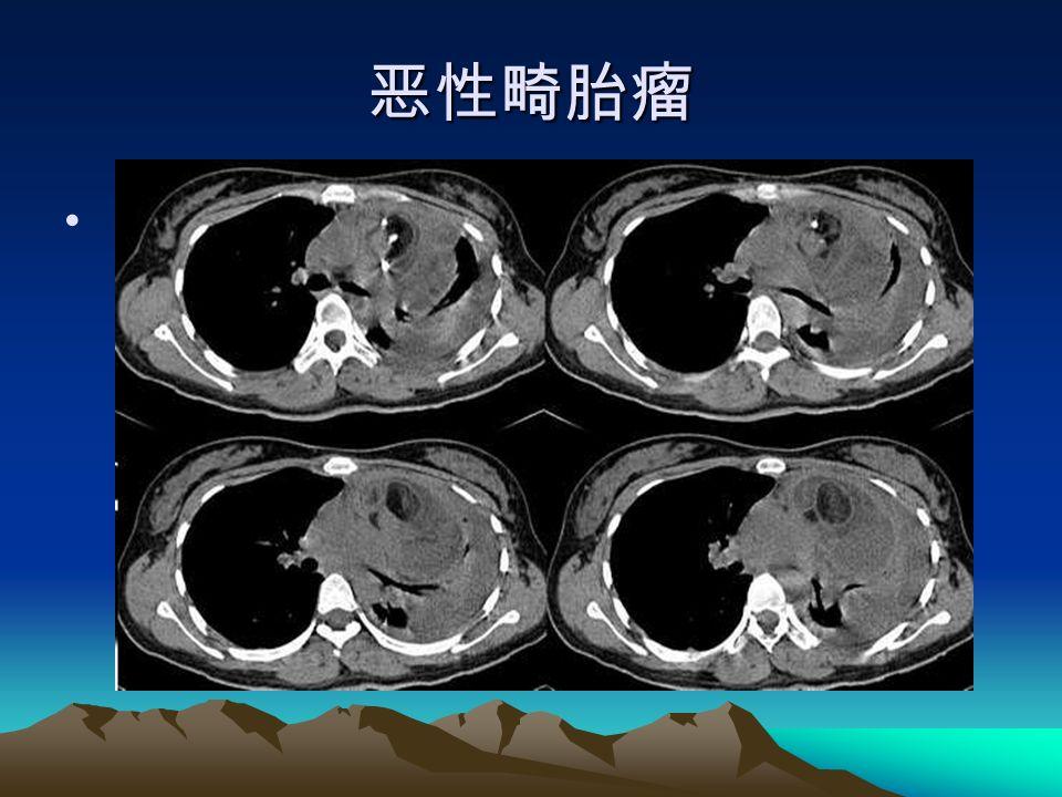 恶性畸胎瘤