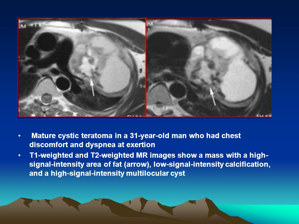 Mature cystic teratoma in a 31-year-old man who had chest discomfort and dyspnea at exertion T1-weighted and T2-weighted MR images show a mass with a high- signal-intensity area of fat (arrow), low-signal-intensity calcification, and a high-signal-intensity multilocular cyst
