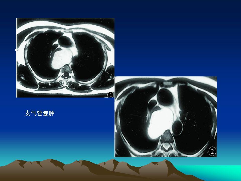 支气管囊肿