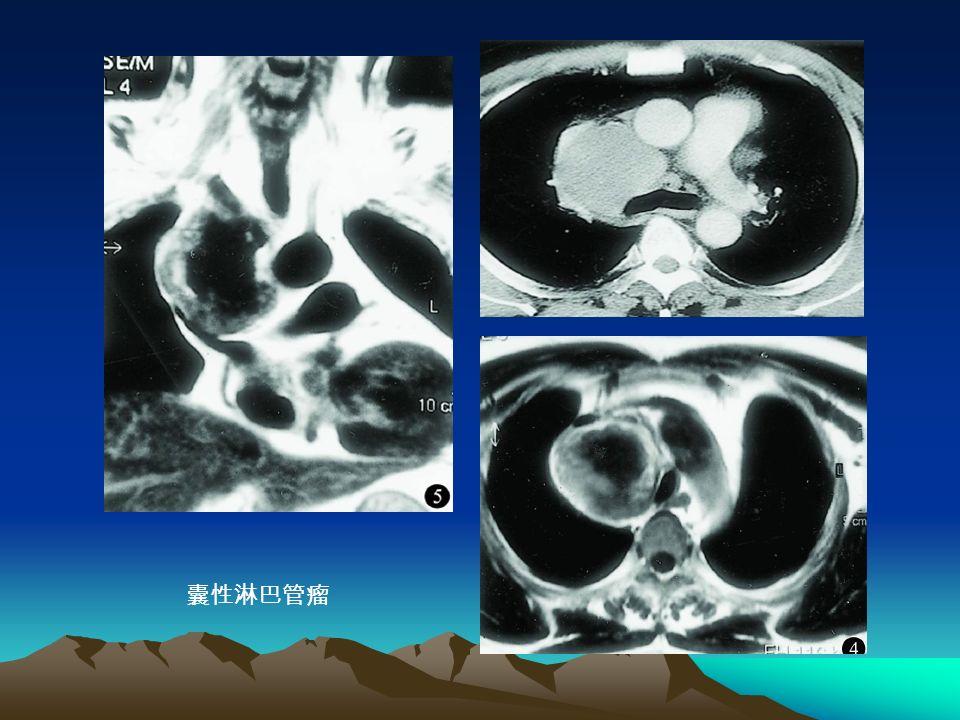 囊性淋巴管瘤