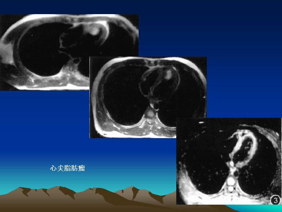 心尖脂肪瘤