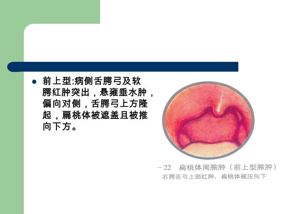 前上型 : 病侧舌腭弓及软 腭红肿突出,悬雍垂水肿, 偏向对侧,舌腭弓上方隆 起,扁桃体被遮盖且被推 向下方。