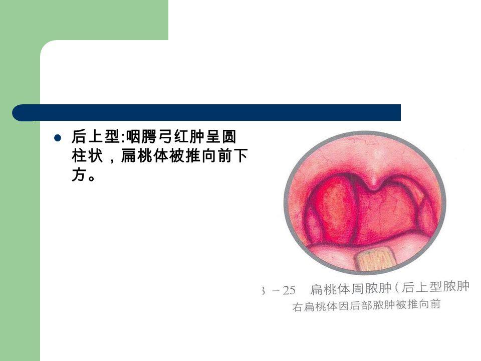 后上型 : 咽腭弓红肿呈圆 柱状,扁桃体被推向前下 方。
