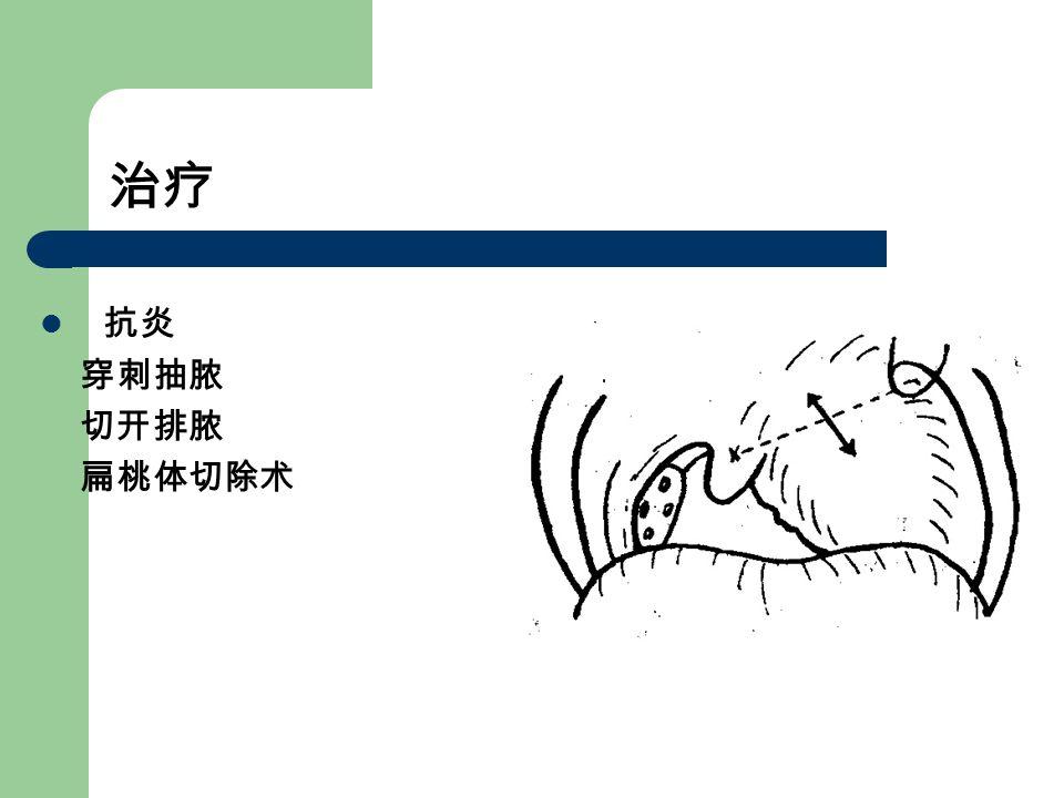 治疗 抗炎 穿刺抽脓 切开排脓 扁桃体切除术