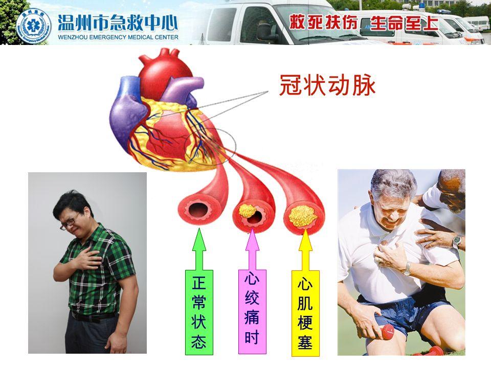 冠状动脉 正常状态正常状态 心肌梗塞心肌梗塞 心绞痛时心绞痛时