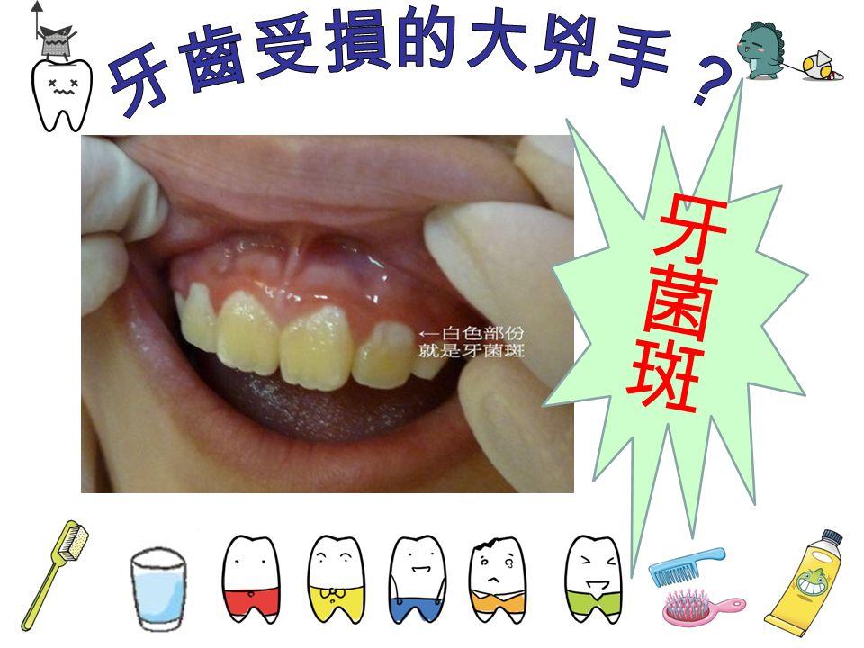 在牙齒表面會不停地形成一 層細菌薄膜,稱為牙菌斑。