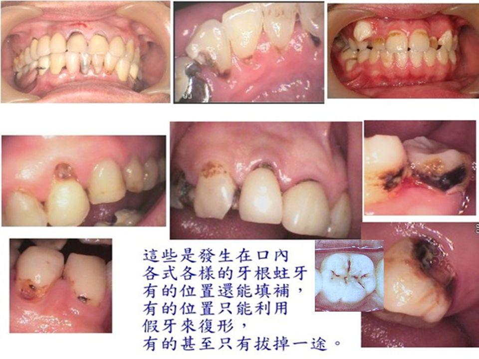 12 齲齒 開始發生在琺瑯 質時,人體並沒有感覺, 而慢慢往內侵蝕至象牙 質後,開始對溫度產生 敏感,齲齒部位若深至 牙髓腔,則會出現疼痛 感,嚴重時,甚至會導 致全身性細菌感染(蜂 窩性組織炎 … )。 齲齒
