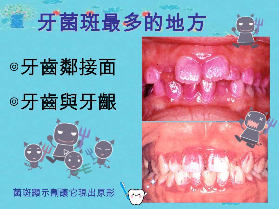讓蛀牙與牙周病元兇 露出原形的利器 牙菌斑顯示劑