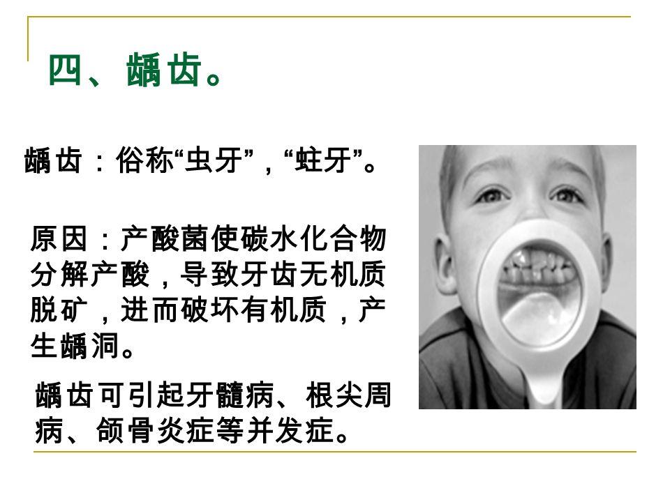 四、龋齿。 龋齿:俗称 虫牙 , 蛀牙 。 原因:产酸菌使碳水化合物 分解产酸,导致牙齿无机质 脱矿,进而破坏有机质,产 生龋洞。 龋齿可引起牙髓病、根尖周 病、颌骨炎症等并发症。