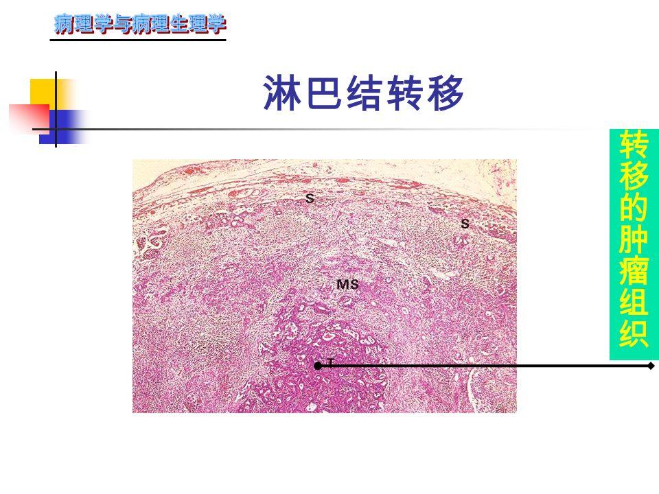 淋巴道转移 淋巴管内癌栓淋巴管内癌栓