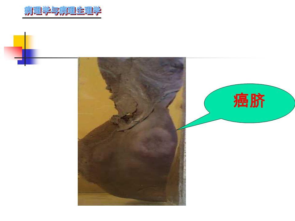 肝血道转移癌