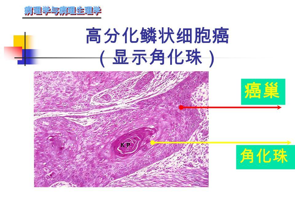 口唇部鳞状细胞癌