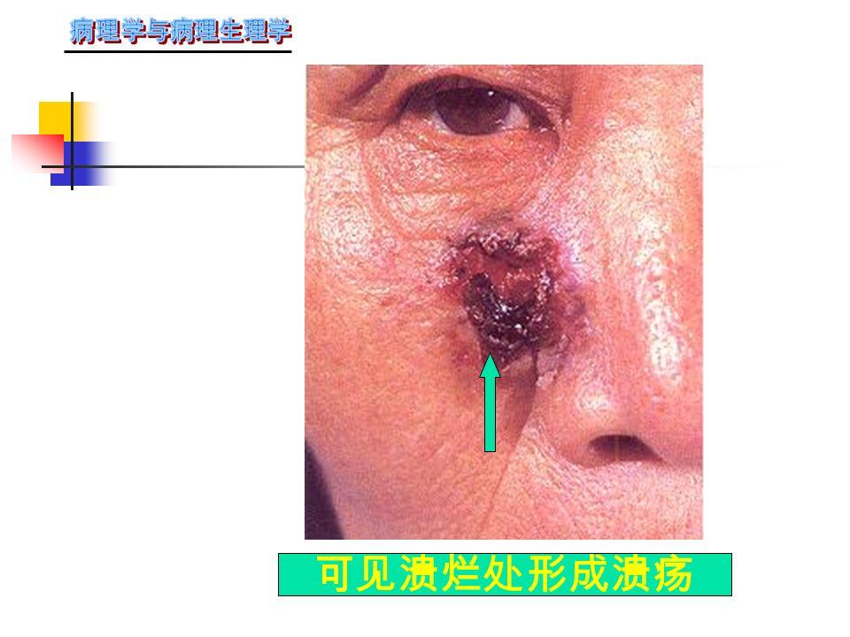 ( 二 ) 基底细胞癌:常见于脸部、眼和鼻 附近。老年多发。开始呈乳头状,以后 溃烂形成侵蚀状溃疡。肿瘤生长缓慢, 癌细胞与皮肤的基底细胞相似。排列呈 条索状或假腺样。有的有黑色素沉着。