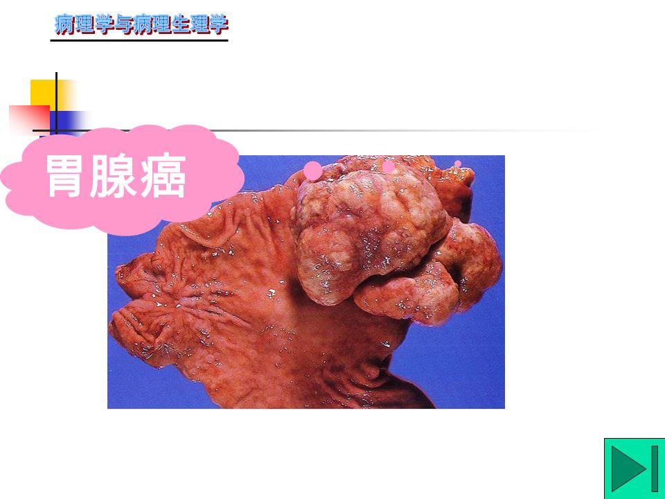 ( 四 ) 腺癌:来源:腺泡、导管或粘膜表 面的腺上皮。肉眼形状多样,可呈息肉 状、溃疡状或弥漫性浸润;也可为囊状。 最常见于胃、结肠、乳腺、肺等。