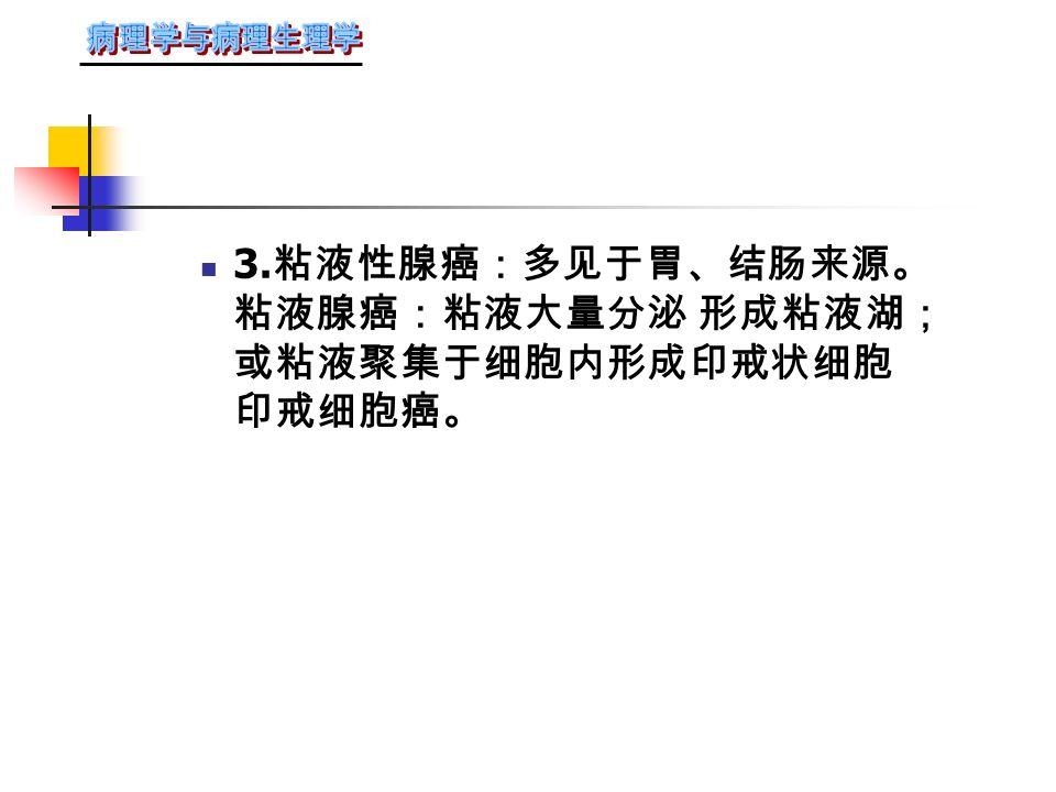 M :病理性 核分裂 G :腺腔 高分化腺癌