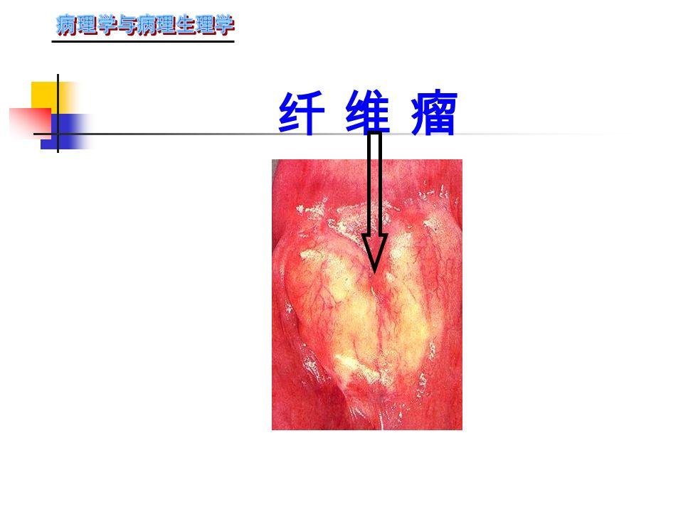 三 良性间叶组织肿瘤 ( 一 ) 纤维瘤:实性结节、有包膜、切面 灰白色、编织状。 镜下:瘤细胞相似于纤维母细胞,间质 为血管。 ( 二 ) 脂肪瘤:好发于批下组织,有包膜, 由成熟的脂肪细胞构成。