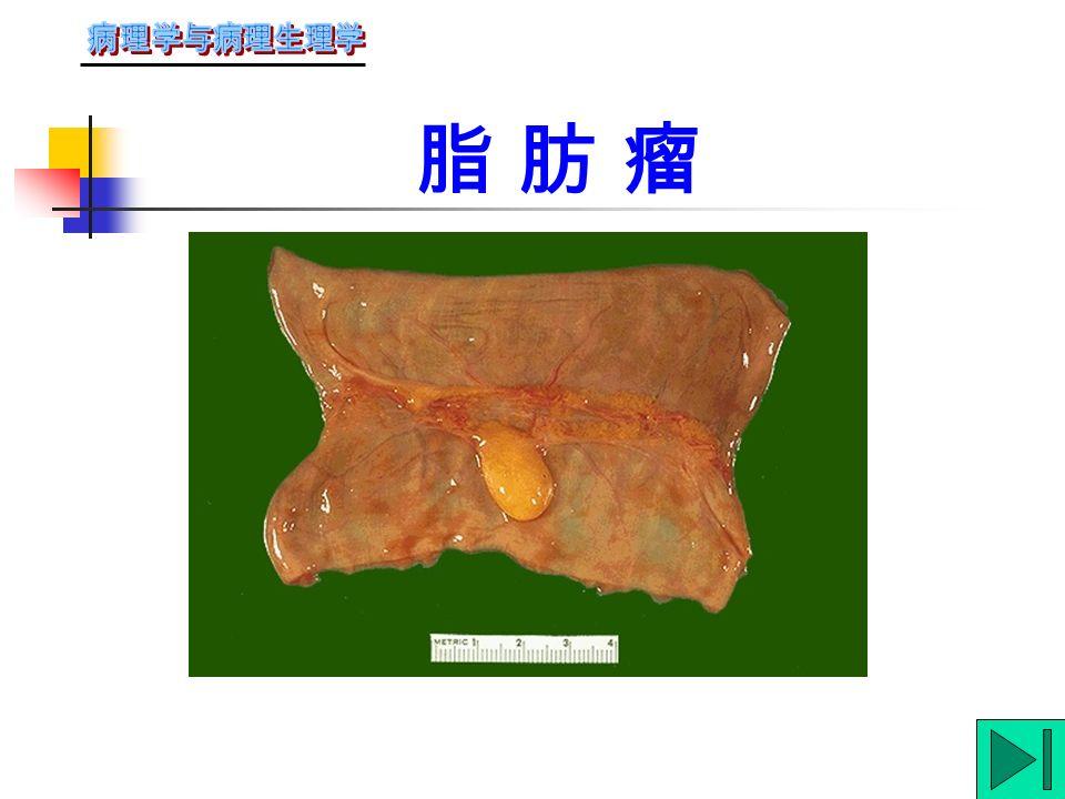 纤 维 瘤纤 维 瘤