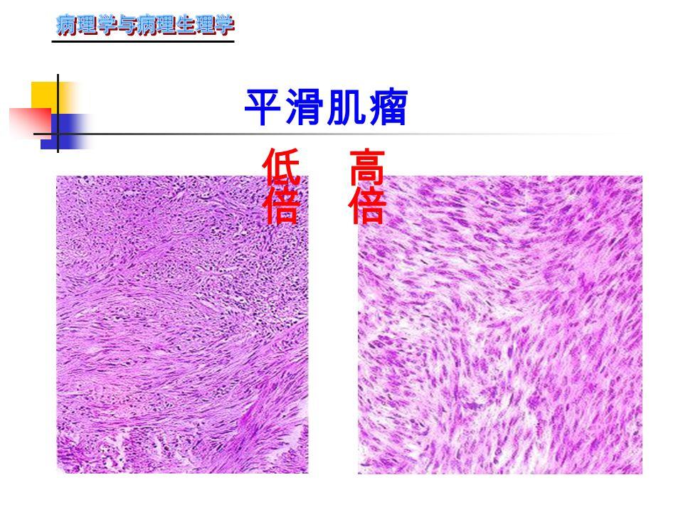 多发性平滑肌瘤