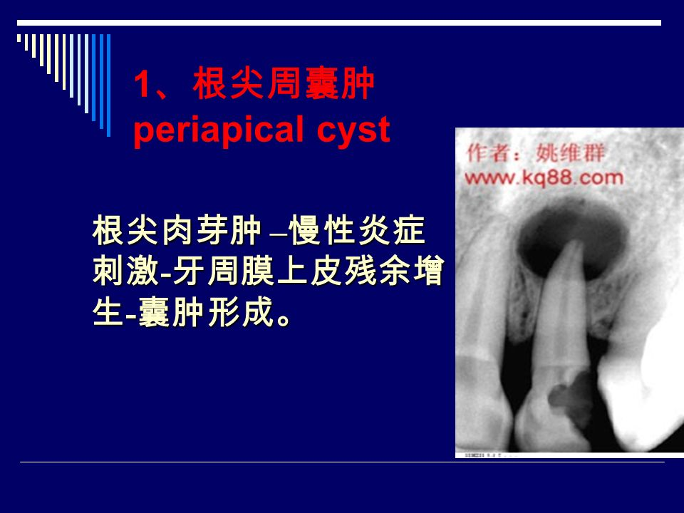 1 、根尖周囊肿 periapical cyst 根尖肉芽肿 – 慢性炎症 刺激 - 牙周膜上皮残余增 生 - 囊肿形成。
