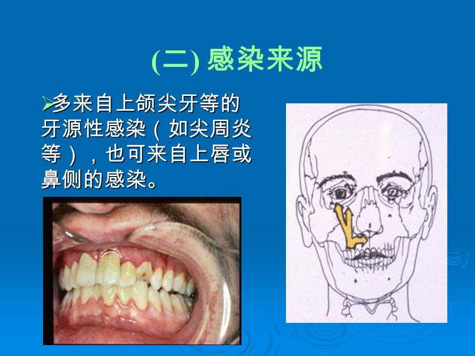( 二 ) 感染来源  多来自上颌尖牙等的 牙源性感染(如尖周炎 等),也可来自上唇或 鼻侧的感染。