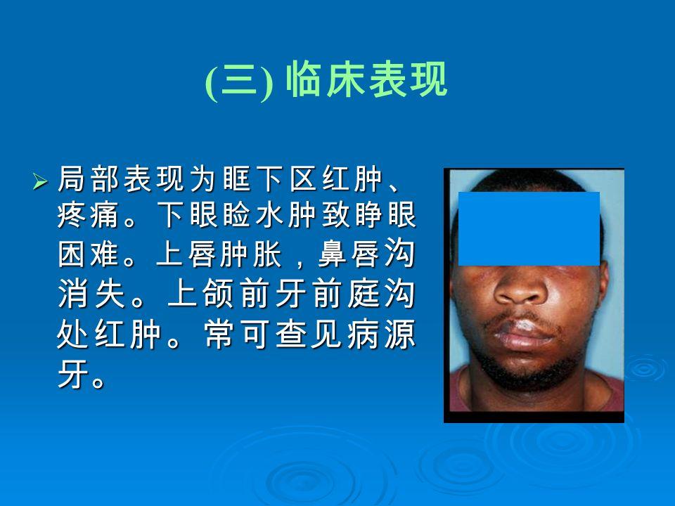 ( 三 ) 临床表现  局部表现为眶下区红肿、 疼痛。下眼睑水肿致睁眼 困难。上唇肿胀,鼻唇 沟 消失。上颌前牙前庭沟 处红肿。常可查见病源 牙。