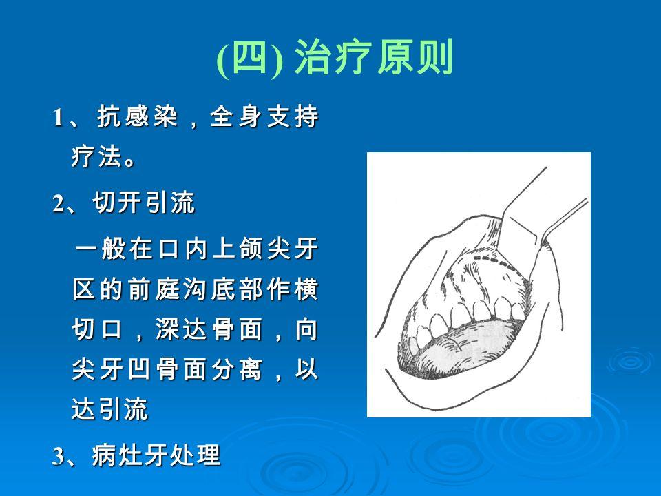 ( 四 ) 治疗原则 1 、抗感染,全身支持 疗法。 1 、抗感染,全身支持 疗法。 2 、切开引流 2 、切开引流 一般在口内上颌尖牙 区的前庭沟底部作横 切口,深达骨面,向 尖牙凹骨面分离,以 达引流 一般在口内上颌尖牙 区的前庭沟底部作横 切口,深达骨面,向 尖牙凹骨面分离,以 达引流 3 、病灶牙处理 3 、病灶牙处理