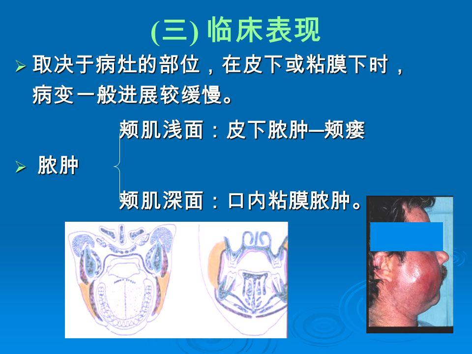 ( 三 ) 临床表现  取决于病灶的部位,在皮下或粘膜下时, 病变一般进展较缓慢。 颊肌浅面:皮下脓肿 ─ 颊瘘 颊肌浅面:皮下脓肿 ─ 颊瘘  脓肿 颊肌深面:口内粘膜脓肿。 颊肌深面:口内粘膜脓肿。