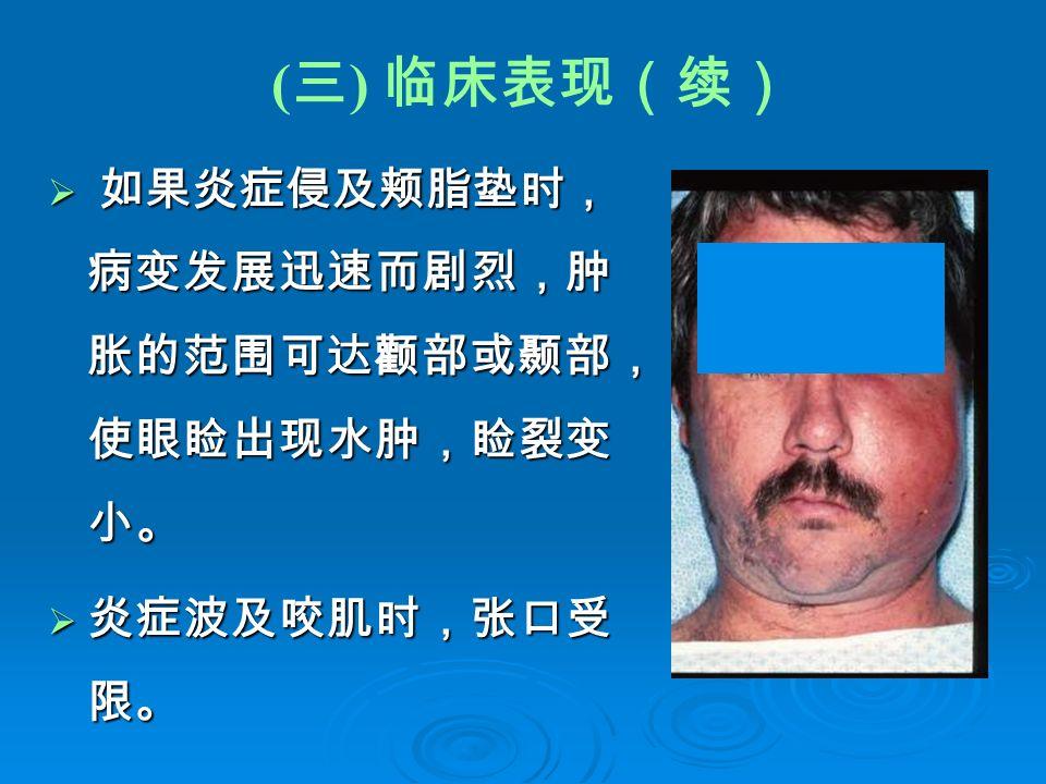 ( 三 ) 临床表现(续)  如果炎症侵及颊脂垫时, 病变发展迅速而剧烈,肿 胀的范围可达颧部或颞部, 使眼睑出现水肿,睑裂变 小。  炎症波及咬肌时,张口受 限。