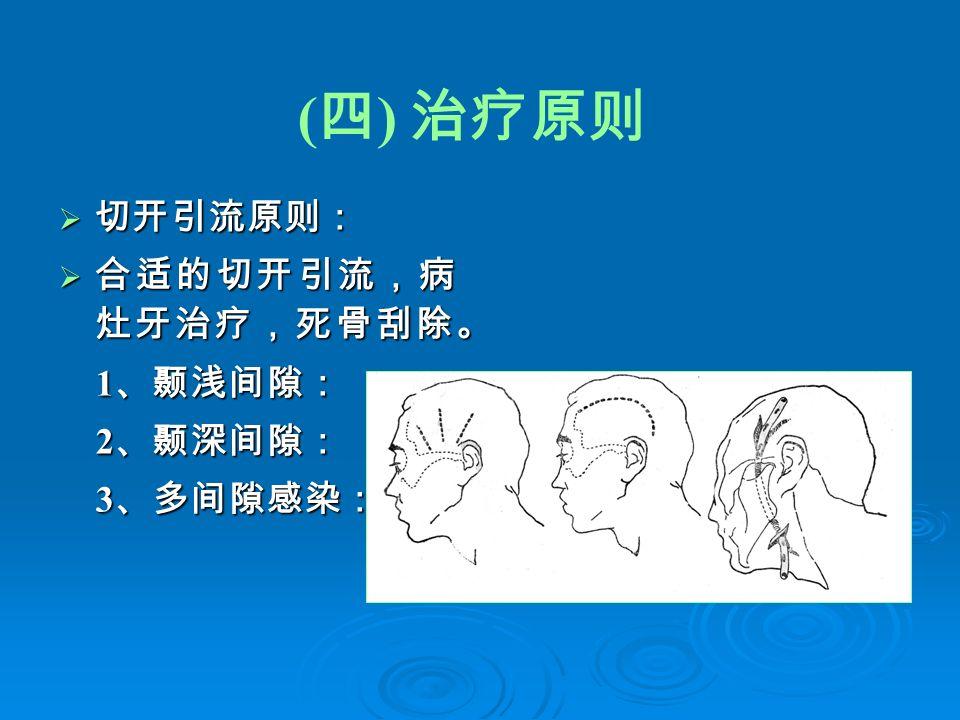 ( 四 ) 治疗原则  切开引流原则:  合适的切开引流,病 灶牙治疗,死骨刮除。 1 、颞浅间隙: 1 、颞浅间隙: 2 、颞深间隙: 2 、颞深间隙: 3 、多间隙感染: 3 、多间隙感染: