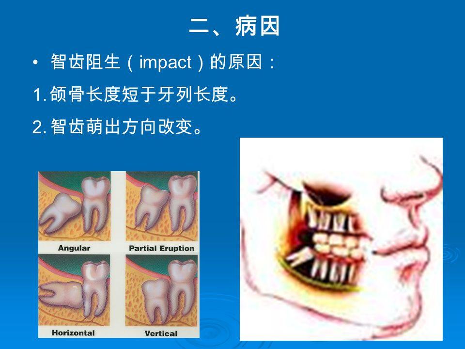 二、病因 智齿阻生( impact )的原因: 1. 颌骨长度短于牙列长度。 2. 智齿萌出方向改变。