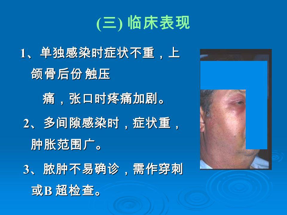 ( 三 ) 临床表现 1 、单独感染时症状不重,上 颌骨后份 触压 痛,张口时疼痛加剧。 痛,张口时疼痛加剧。 2 、多间隙感染时,症状重, 肿胀范围广。 2 、多间隙感染时,症状重, 肿胀范围广。 3 、脓肿不易确诊,需作穿刺 或 B 超检查。 3 、脓肿不易确诊,需作穿刺 或 B 超检查。