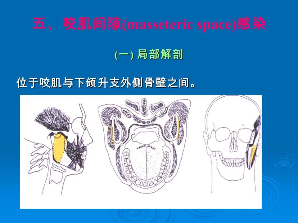 五、咬肌间隙 (masseteric space) 感染 ( 一 ) 局部解剖 位于咬肌与下颌升支外侧骨壁之间。