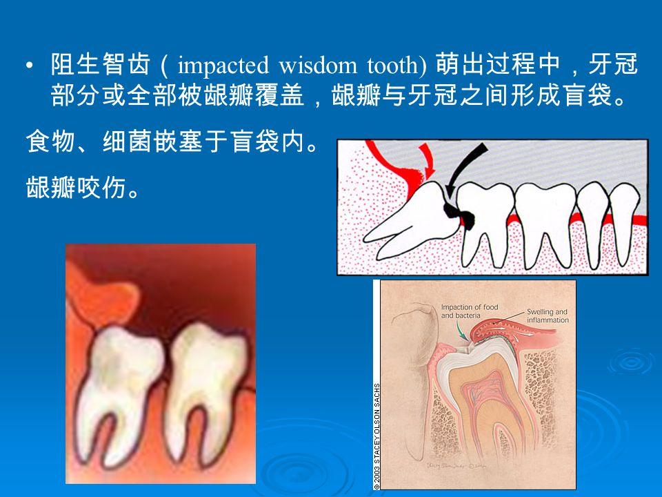 阻生智齿( impacted wisdom tooth) 萌出过程中,牙冠 部分或全部被龈瓣覆盖,龈瓣与牙冠之间形成盲袋。 食物、细菌嵌塞于盲袋内。 龈瓣咬伤。