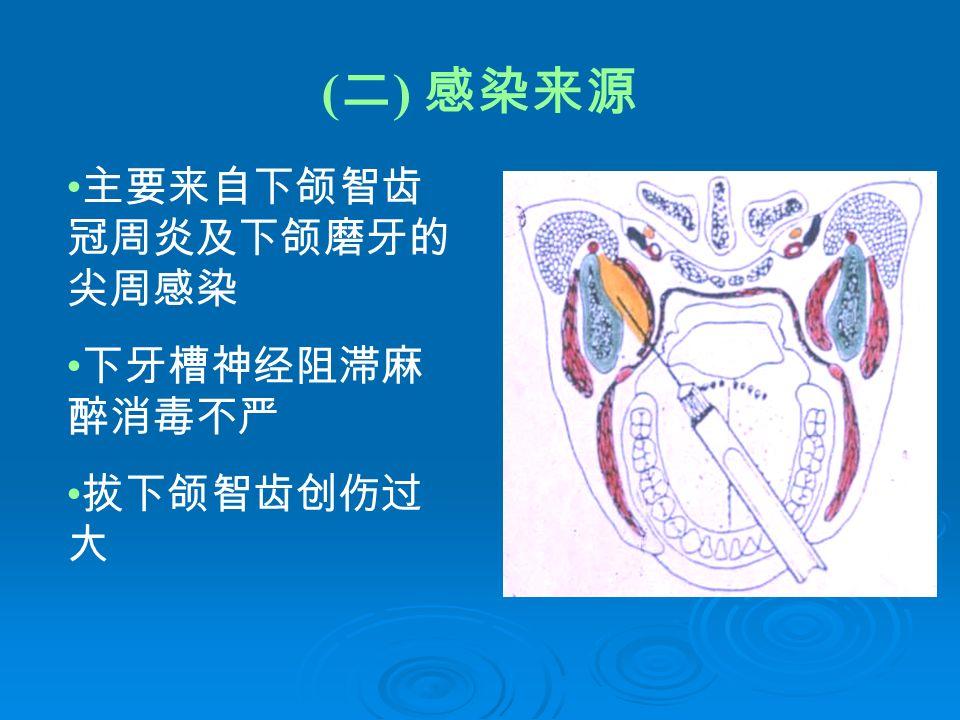 ( 二 ) 感染来源 主要来自下颌智齿 冠周炎及下颌磨牙的 尖周感染 下牙槽神经阻滞麻 醉消毒不严 拔下颌智齿创伤过 大