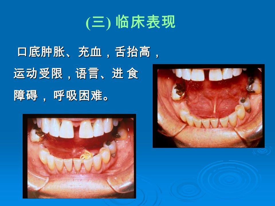 ( 三 ) 临床表现 口底肿胀、充血,舌抬高, 运动受限,语言、进 食 障碍, 呼吸困难。 口底肿胀、充血,舌抬高, 运动受限,语言、进 食 障碍, 呼吸困难。