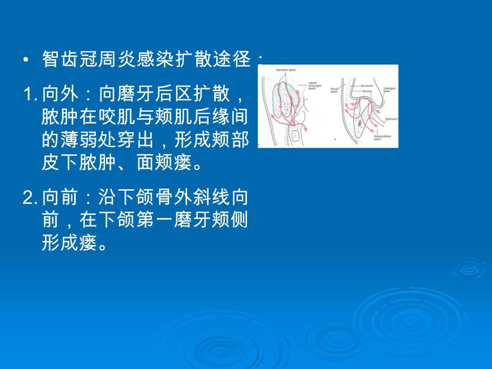 智齿冠周炎感染扩散途径: 1. 向外:向磨牙后区扩散, 脓肿在咬肌与颊肌后缘间 的薄弱处穿出,形成颊部 皮下脓肿、面颊瘘。 2. 向前:沿下颌骨外斜线向 前,在下颌第一磨牙颊侧 形成瘘。