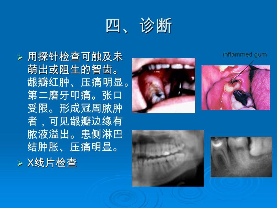 四、诊断  用探针检查可触及未 萌出或阻生的智齿。  用探针检查可触及未 萌出或阻生的智齿。 龈瓣红肿、压痛明显。 第二磨牙叩痛。张口 受限。形成冠周脓肿 者,可见龈瓣边缘有 脓液溢出。患侧淋巴 结肿胀、压痛明显。  X 线片检查
