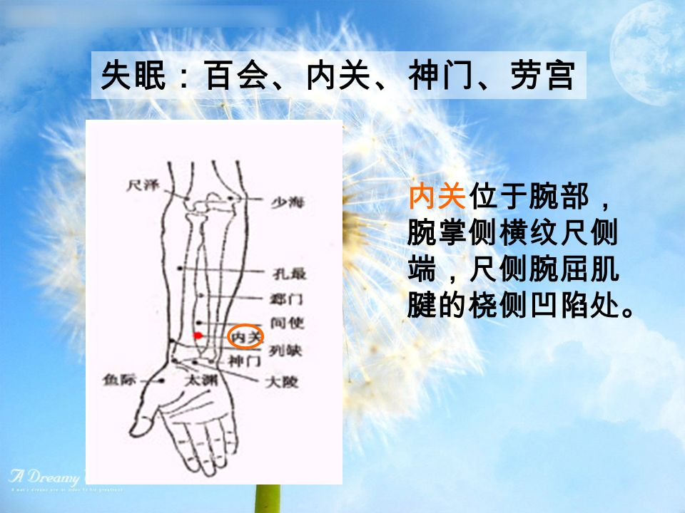 失眠:百会、内关、神门、劳宫 内关位于腕部, 腕掌侧横纹尺侧 端,尺侧腕屈肌 腱的桡侧凹陷处。
